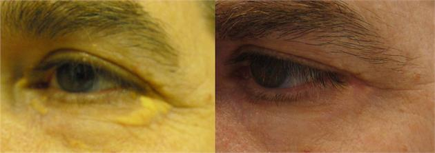 xanthelasma removal2